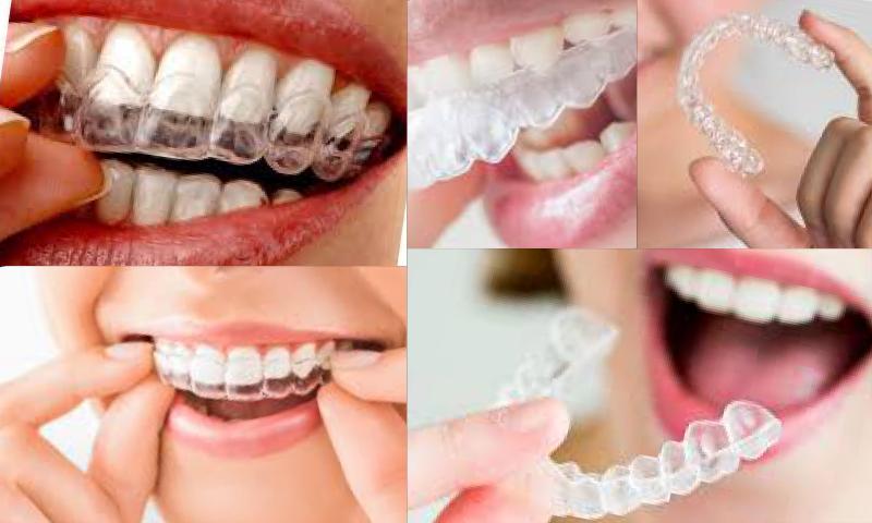 Neden Zirkonyum Diş Kaplama Tercih Etmelisiniz